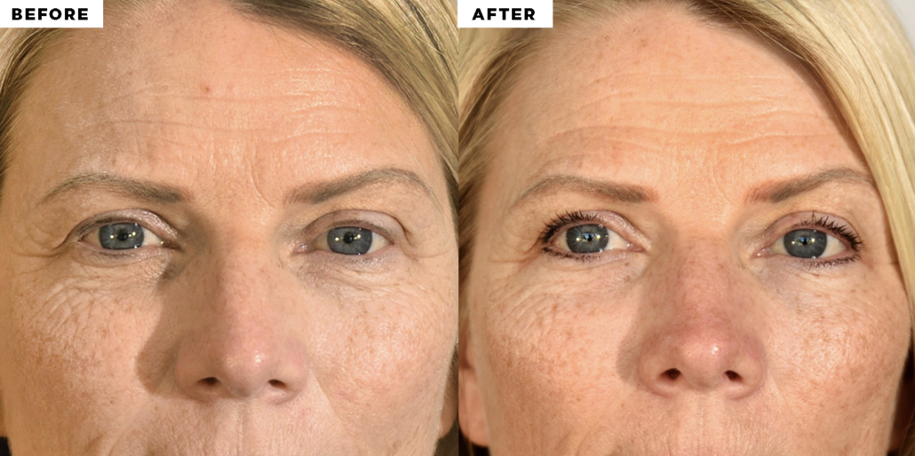 before and after red light therapy for anti-aging