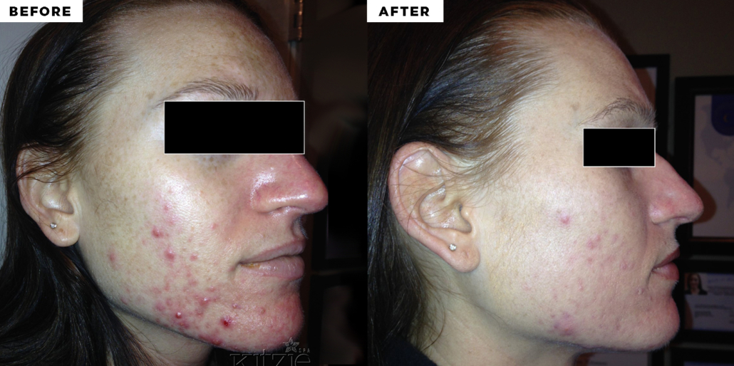 before and after blue light therapy for acne